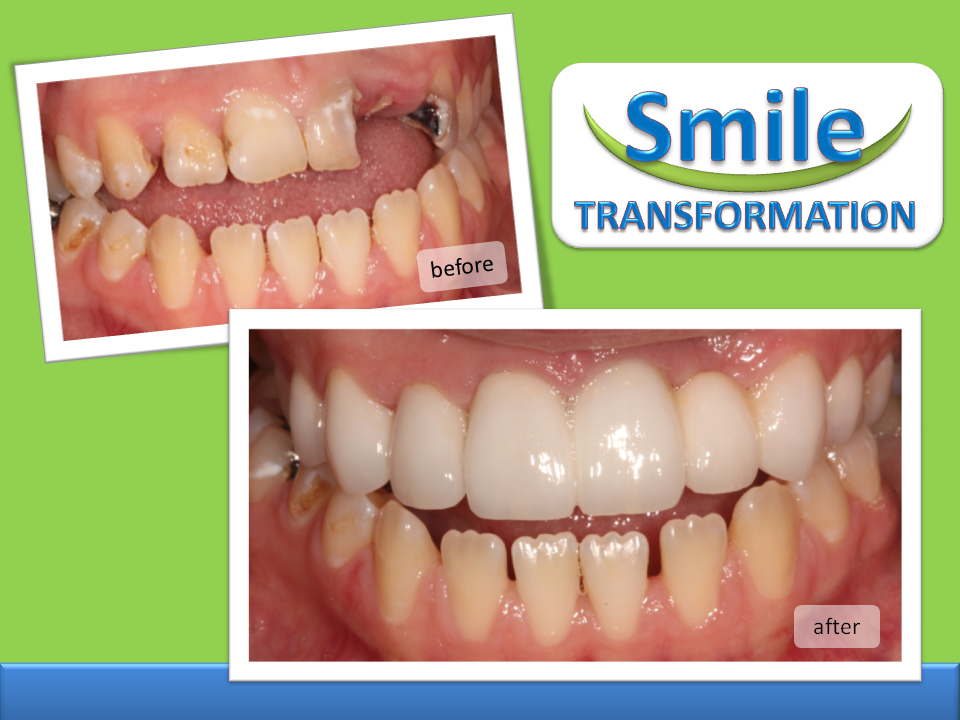 BEFORE_AFTER VENEERS