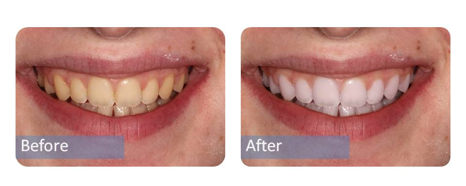 Before and after pics whitening pics abbey