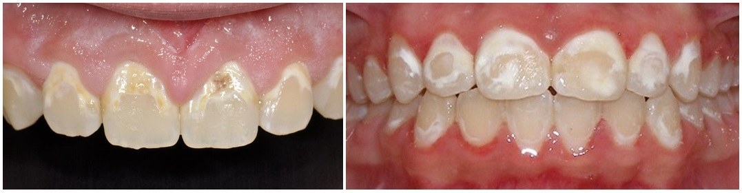 Cavity-and-decalcification