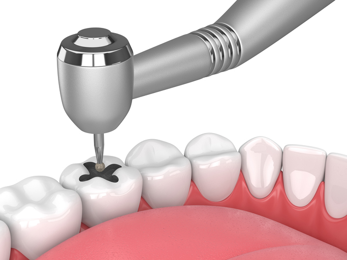 Dental Fillings Service in Sacramento & Roseville, CA