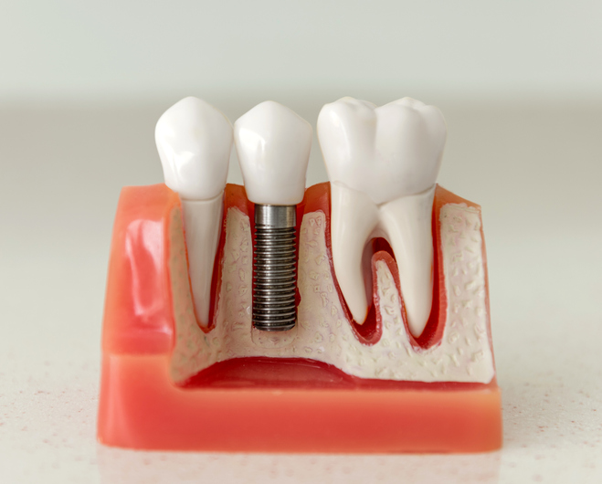Dental model with implantation