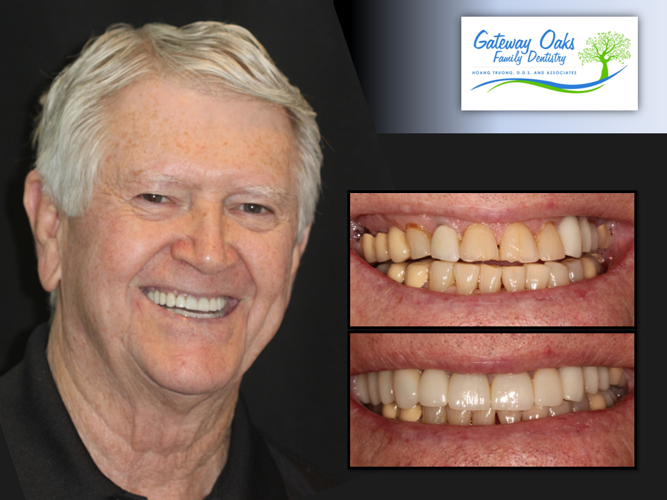 James-Smith_Veneers-Before-and-After