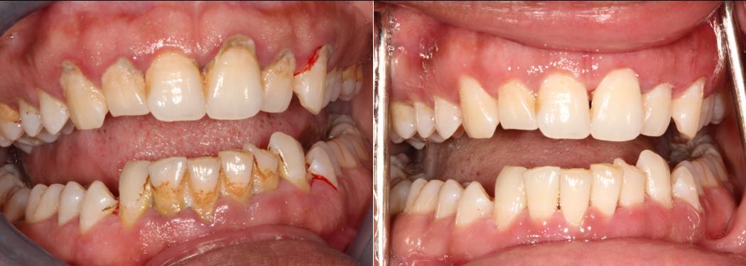 Sacramento-Dentist_Gum-Disease
