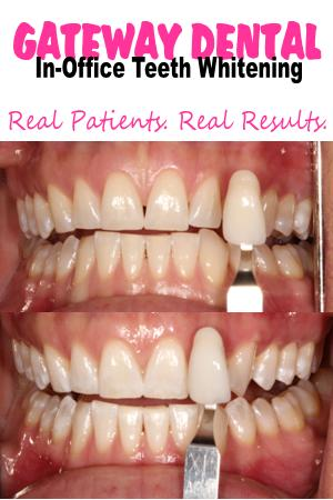 Teeth-whitening-Sacramento_Before-After