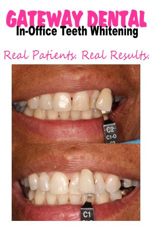 Teeth-whitening-Sacramento_Before-After2