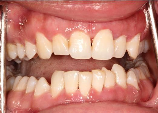 gum-disease-after