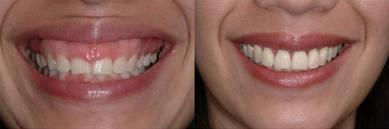 gummy-smile-correction