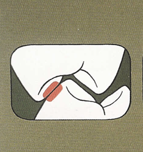teeth-dont-fit