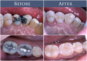 white-fillings_before-and-after
