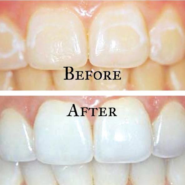 white spot removal