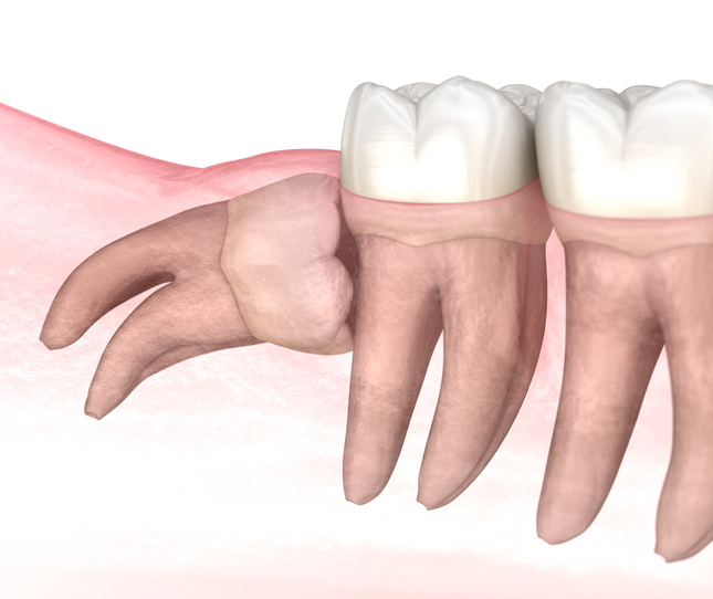 Horizontal impaction of Wisdom tooth. Medically accurate tooth 3D illustration