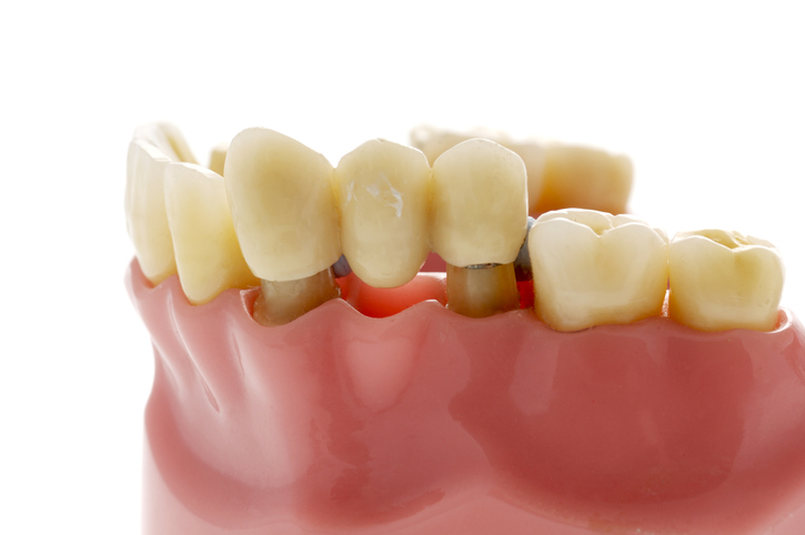 model of dental bridge used to replace missing tooth